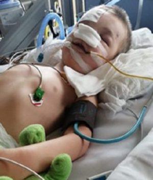 Zbieramy na rehabilitację dla 5-letniego Marcela po wypadku
