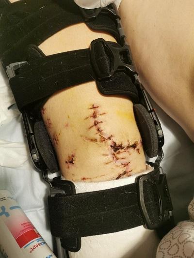 uszkodzone-kolano.jpg