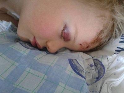 5,5 letni Dawid potrącony przez samochód. Potrzebna pomoc!